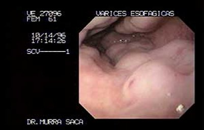 Endoscopia Aguilares